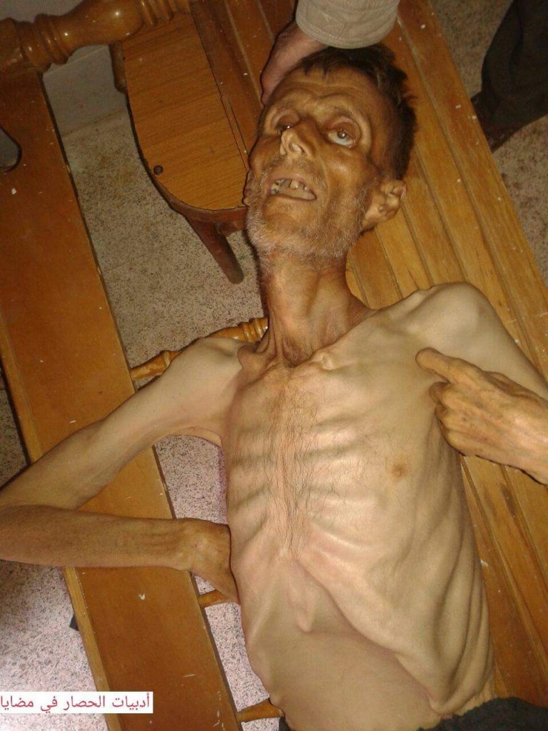 The Syrian Observatory for human rights captures horrid photos of starving people in Madaya